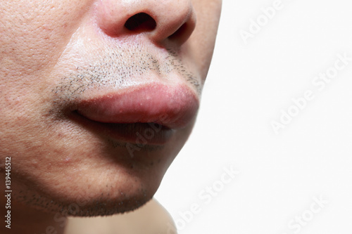 Photo The skin around the mouth caused by an allergic reaction
