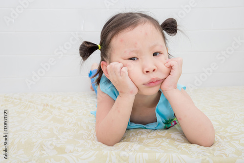 Little Asian Girl With Red Spot From Mosquito Bite On Face Buy