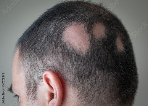 Photo Alopecia Aerata - Spot Baldness