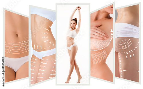 Leinwand Poster  The cellulite removal plan. White markings on young woman body