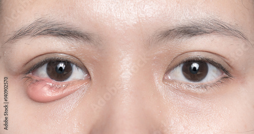 Close up of eyelid abscess (stye, hordeolum) Canvas Print