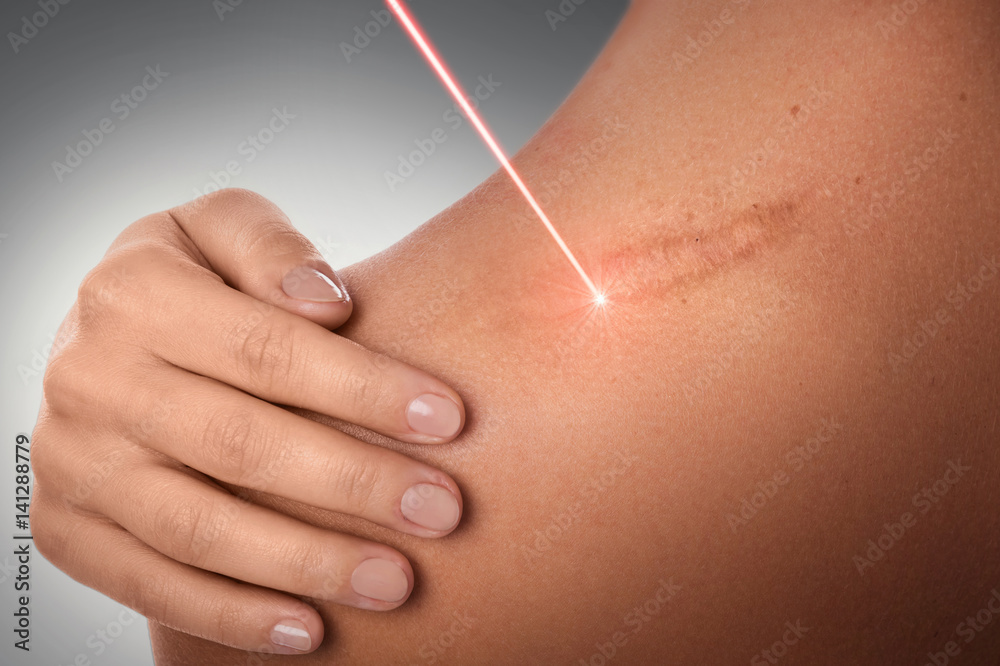 Fototapeta Laser scar removal treatment