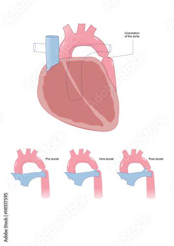 coarctation of the aorta: congenital defect (narrowing of the aorta arch) Wallpaper Mural