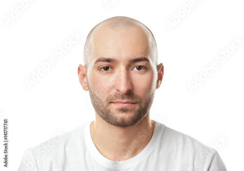 Fotografia Hair loss concept. Portrait of young bald man on white background