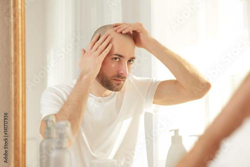 Fényképezés  Hair loss concept. Young man looking at mirror