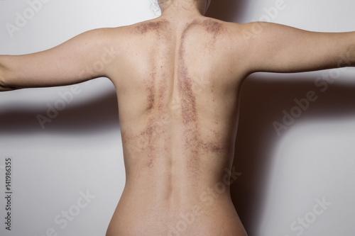Fototapeta Rear view of a woman with bruises on white background. obraz na płótnie