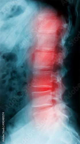X-ray image lateral spine pain – kaufen Sie dieses Foto und finden ...