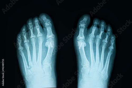 X-Ray film of human Feet – kaufen Sie dieses Foto und finden Sie ...