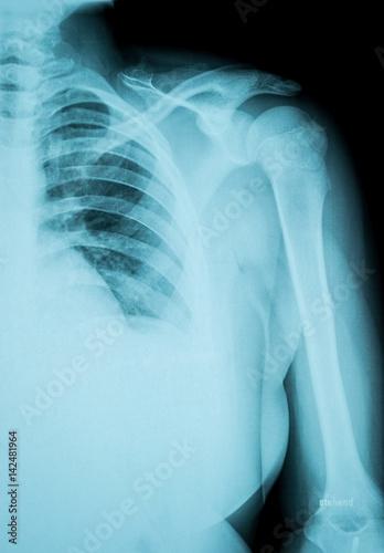 shoulder dislocated X-Ray film – kaufen Sie dieses Foto und finden ...
