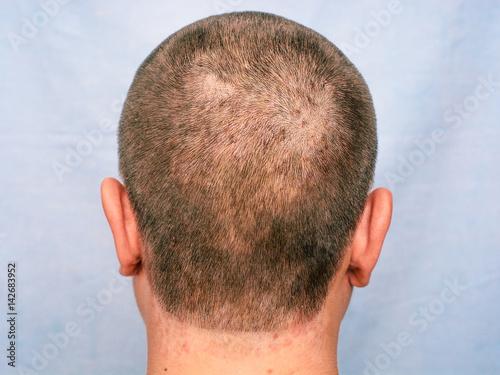 Fotografie, Obraz  Seborrheic dermatitis. inflammatory changes of the skin.