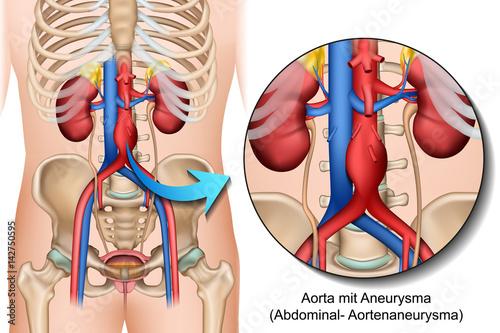 Anatomie Bauchaortenaneurysma, Abdominales Aortenaneurysma ...