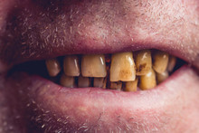 Yellow And Curved Teeth Of A S...