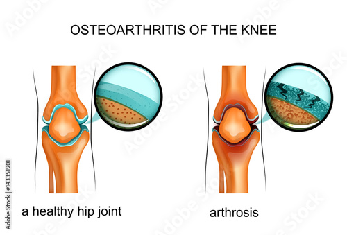 Photo osteoarthritis of the knee