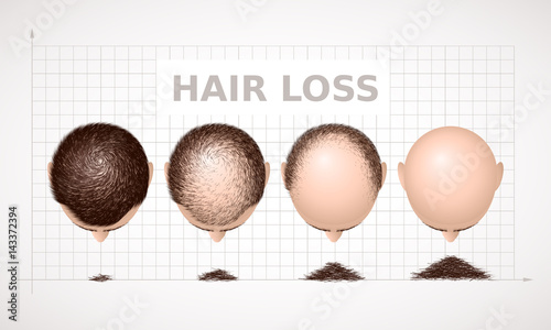Photo Hair loss. Graph of four stages of alopecia