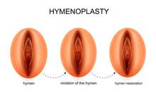 Hymen Restoration