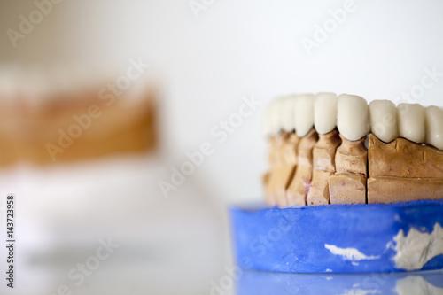 Fotografia, Obraz  Zirconium Porcelain Tooth plate in Dentist Store