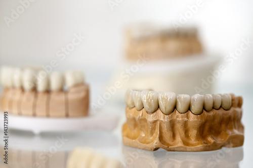 Vászonkép  Zirconium Porcelain Tooth plate in Dentist Store