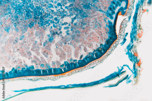 Photo sur Aluminium Cristaux Medical Lab Prepared microscopic- weevil rye