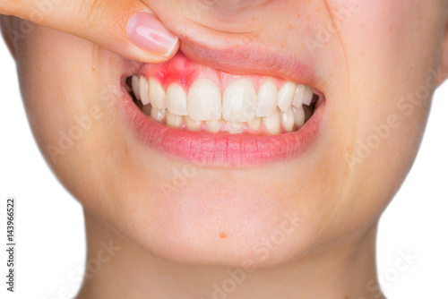 Closeup portrait of young woman showing, with his finger, inflamed upper gingiva with pain expression Wallpaper Mural