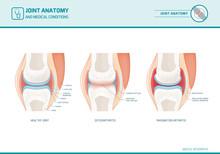 Joint Anatomy, Osteoarthritis And Rheumatoid Arthritis Infographic