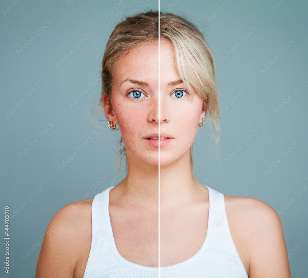 Fototapeta Young Model Woman with Skin Problem. Female Face Divided into two Parts one Healthy and one Unhealthy. Facial Treatment, Medicine and Cosmetology Concept