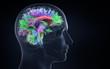 canvas print picture - brain activity