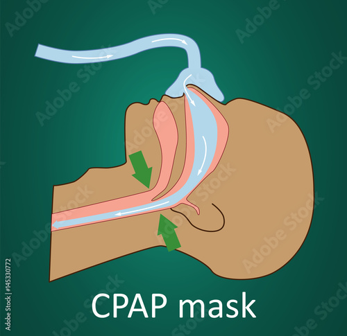 Photo Vector illustration of normal breathing with CPAP mask.