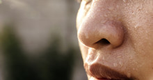 Closeup  Sweating On Asian Fac...