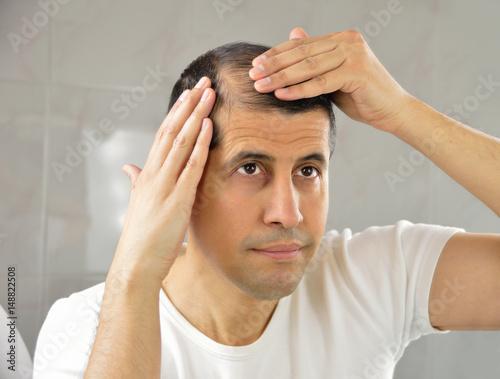 Fotografia, Obraz  Hair loss