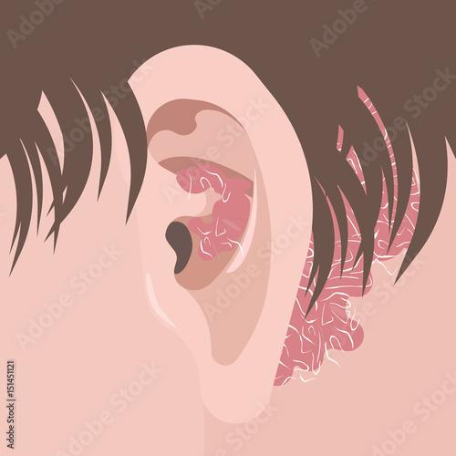 prostatitis symptome der ursache chronische abakterielle anleitung