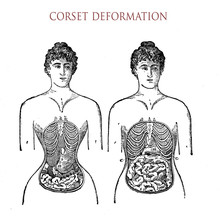 Vintage Fashion Lifestyle, Corset Usage And Unhealthy Deformation