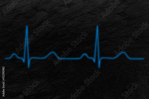 Foto  Electrocardiograma