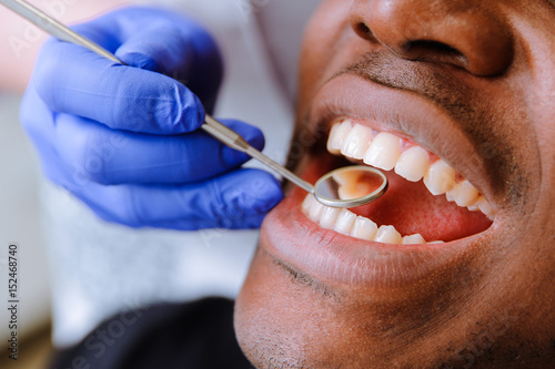 African male patient getting dental treatment in dental clinic Canvas-taulu