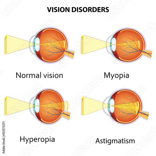 Fotografía  Common vision disorders.
