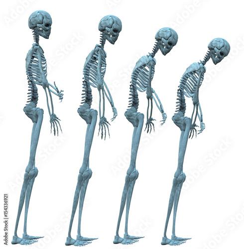 Fotografía  Development of osteoporosis