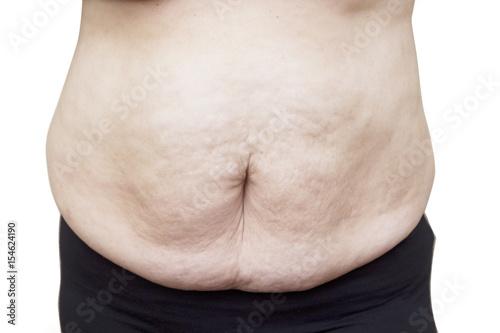 Fotografie, Obraz  Fat female body part.