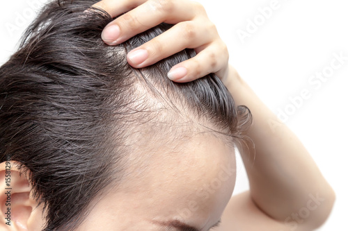 Photo Bald man or woman worry about his or her less hairline on white background isola