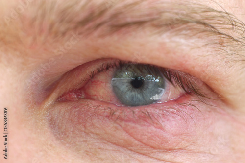 Eye infection / Infection of an eyelid on an eye with contact lens Wallpaper Mural