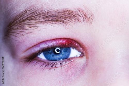 stye kid eye red skin barley bacteria virus Canvas Print