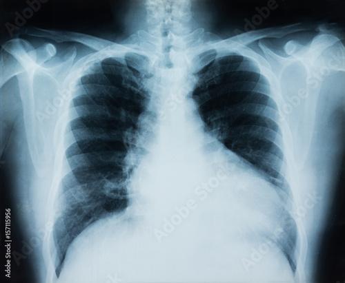 x-ray chest – kaufen Sie dieses Foto und finden Sie ähnliche Bilder ...