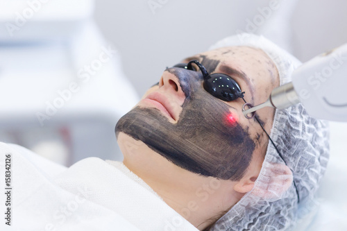 Cuadros en Lienzo Process of photothermolysis, warming the skin, laser carbon peeling