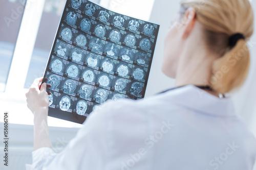 Obraz Involved neurosurgeon examining roentgen brain results at the laboratory - fototapety do salonu