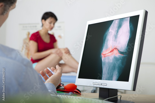 Photo Models On screen, x-ray of a knee arthrosis