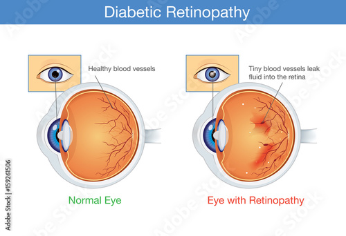 Fotomural  Anatomy of normal eye and Diabetic retinopathy in people who have diabetes