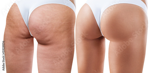 Fotografie, Obraz  Female buttocks before and after treatment.