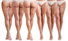 Female Buttocks Before And Aft...