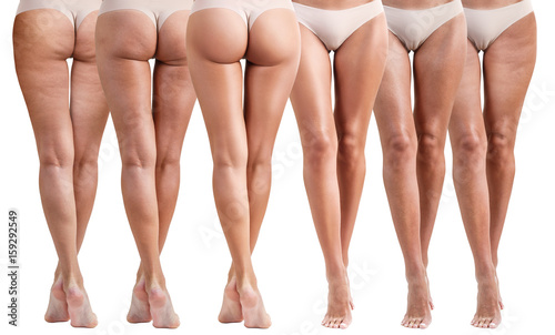 Female buttocks before and after treatment. Canvas-taulu