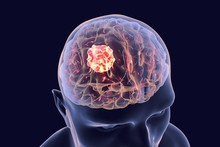 Brain Cancer, 3D Illustration ...