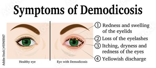 Photo Illustration of Demodicosis