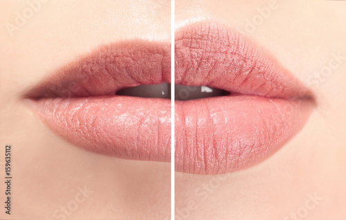 Female lips before and after augmentation procedure Poster Mural XXL